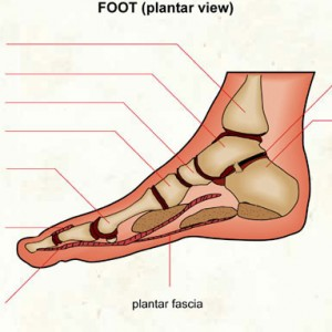 Plantar Fasciitis: What is it, what causes it, what can I do about it?