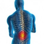 back-pain-photo-240x300
